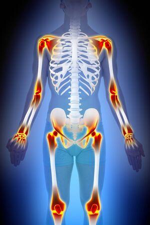articulaciones: concepto de la artritis articulaciones Dolor Anatomía masculina