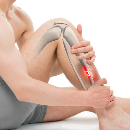 tibia: Comminuted Fracture of the Tibia - Leg Fracture 3D illustration Stock Photo