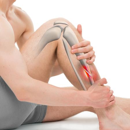 fractura: Fractura oblicua de la tibia - ilustraci�n de la pierna Fractura 3D Foto de archivo