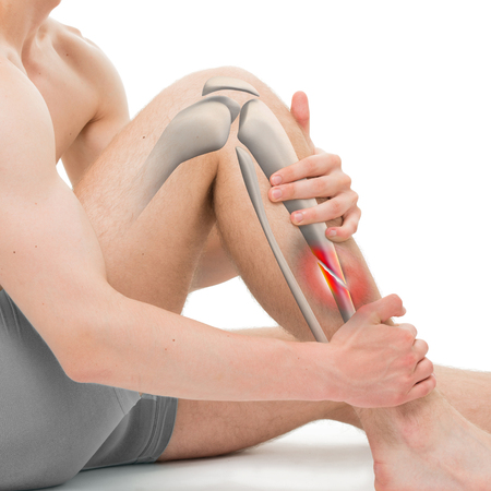 tibia: Oblique Fracture of the Tibia - Leg Fracture 3D illustration Stock Photo