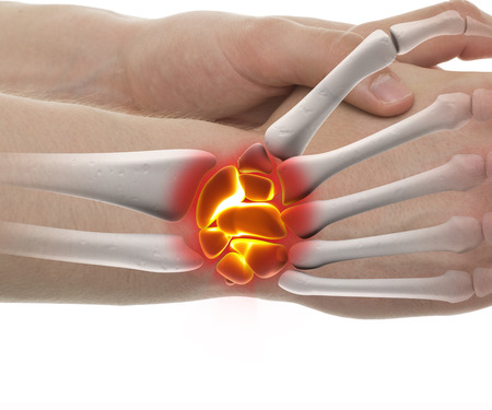 Wrist Fracture - Studio shot with 3D illustration isolated on white Stock Photo