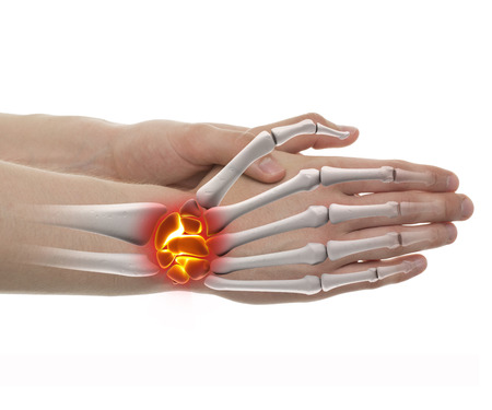distal: Wrist Pain - Studio shot with 3D illustration isolated on white