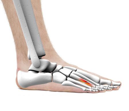 Foot Fracture Metatarsal Bone - Anatomy Male - Studio photo isolated on white