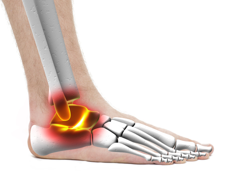 Ankle Pain Injury - Anatomy Male - Studio photo isolated on white Stock Photo