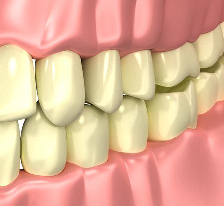 Smokers Yellow Bad Teeth concept - 3d illustration