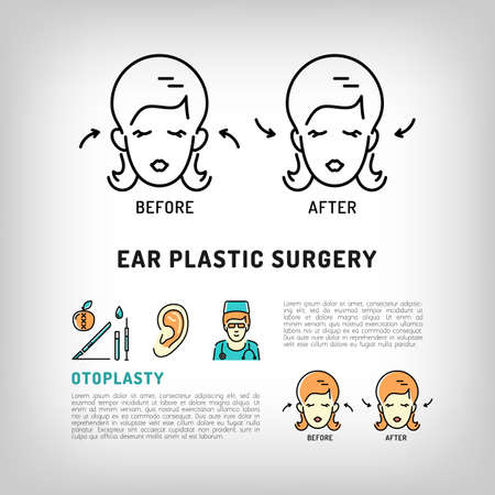 face surgery: Otoplasty Ear Plastic Surgery. Face Plastic surgery concept thin line icons. Medical symbols and cosmetic surgery before and after. Vector illustration