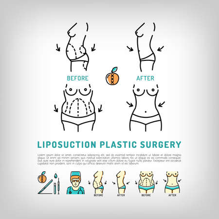 Liposuction and tummy tuck, Body Plastic Surgery thin line art icons. Medical symbols and plastic surgery before and after infographics. Vector illustration