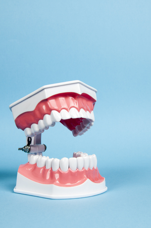 fake smile: a model of the teeth - dentures