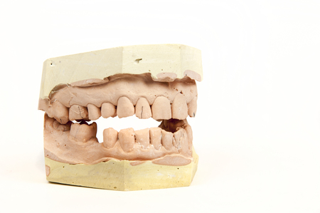 plaster cast: plaster cast of a human jaw