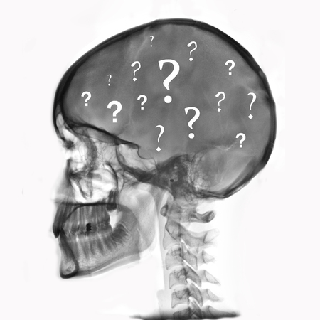 unanswered: radiograph of head with question marks Stock Photo