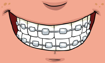 tooth cartoon: Smile with braces on teeth vector illustration