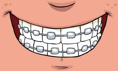 diente caricatura: Sonrisa con las paréntesis en los dientes ilustración vectorial