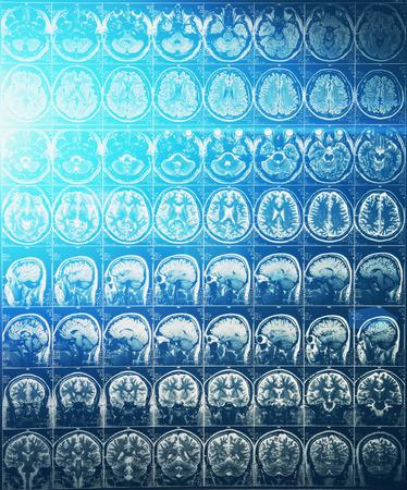 Imagen de resonancia magnética o resonancia magnética de la cabeza y el cerebro con efecto de luz azul, imagen en tonos Foto de archivo