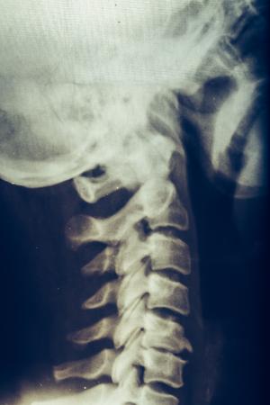X-ray of human neck, vertebra or spine, vertical image, toned Stok Fotoğraf