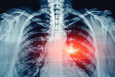 X-Ray film with grain Image of Human Chest and Lungs medical diagnosis with red area as symbol of point of pain and illness.