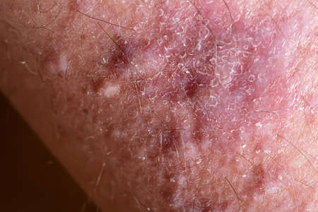Lichen planus on leg skin close-up. Dermatological disease in form of red spots, rashes and itchy skin surface.