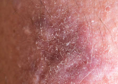 Close-up of bumpy skin with blemishes and scaly epidermis, dermatology and skin diseases.