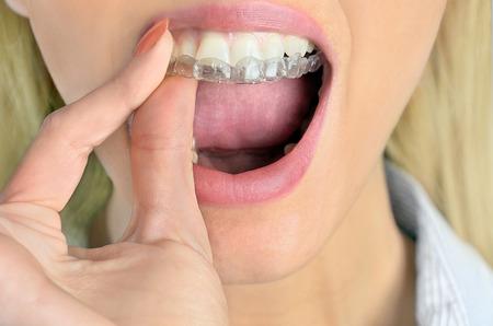 Woman put mouth guard on teeth photo
