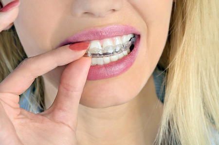 grinding teeth: Woman put mouth guard on teeth