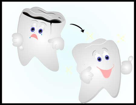 molares: 2 dientes, uno decaído y sensación terrible, pero después de que esté arreglado, es feliz, parece grande y brillante, así