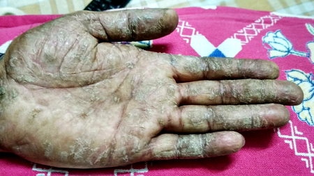 Psoriasis disease on the man's hand. Hard, cracked skin on the inside of the male hand. Cracked, flaky skin on the palm of your hand. Dermatological problems of psoriasis.