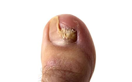 toenail fungus: An agressive toenail fungus (closeup).