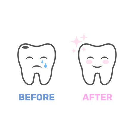 Image of a healthy and bad tooth in the form of animation. Picture for dental sites, for dental clinics and related applications. Vector illustration. EPS 10  イラスト・ベクター素材