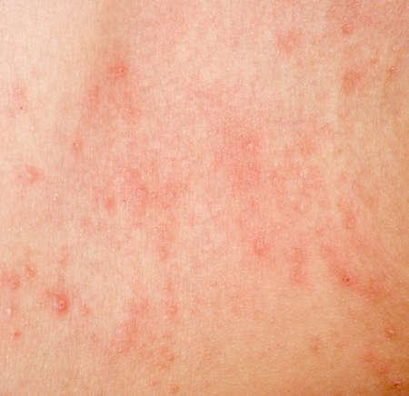 allergic rash dermatitis skin texture of patient
