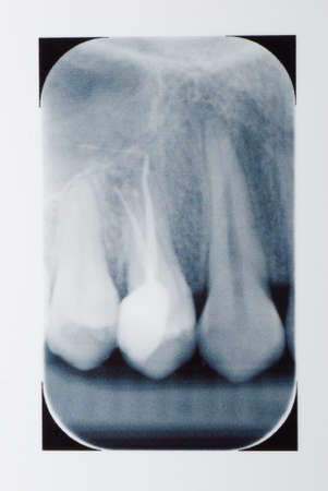dental tooth x-ray film of root canal therapy photo