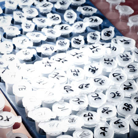 science medical test centrifuge tube Stock Photo - 10413721