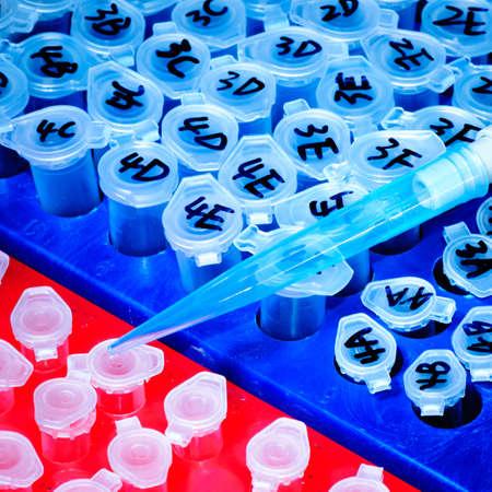pipeta: puntas de pipeta de ciencia prueba sobre centr�fuga tubo Foto de archivo
