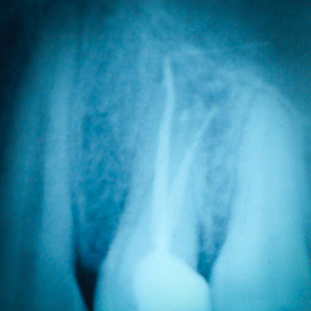 root canal: dental tooth x-ray film of root canal therapy