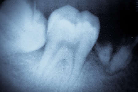 tooth root: dental tooth x-ray film macro