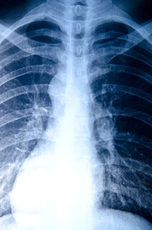 x-ray of chest of human Stock Photo - 10753621