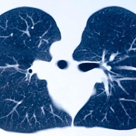 x-ray of human lumbar bone photo