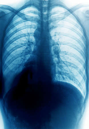 x-ray of chest of human Stock Photo - 11156268