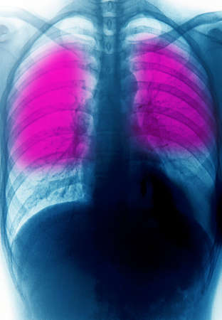 roentgen: x-ray of chest of human