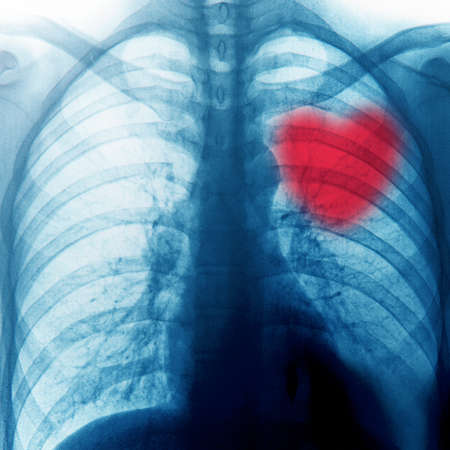 chest x ray: x-ray of chest of human