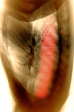 x-ray of human muscle photo