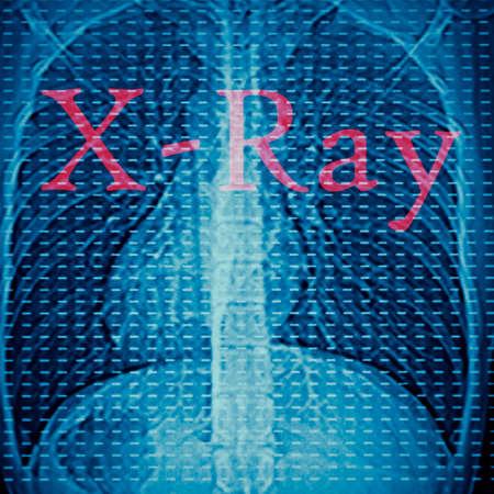 roentgen: x-ray of human lumbar bone Stock Photo