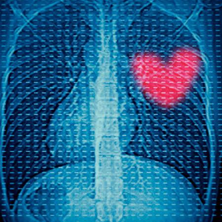 enfermedades del corazon: de rayos X del hueso lumbar humana