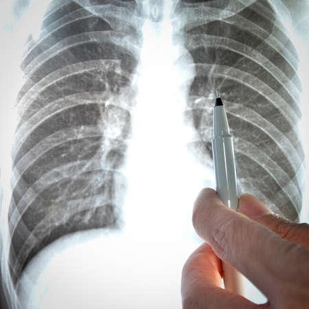 showing x-ray picture of human lumbar vertebra bone photo