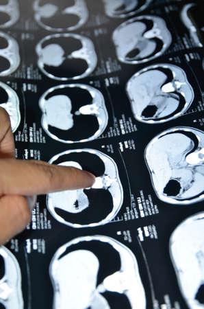 vertebra: showing x-ray picture of human lumbar vertebra bone Editorial