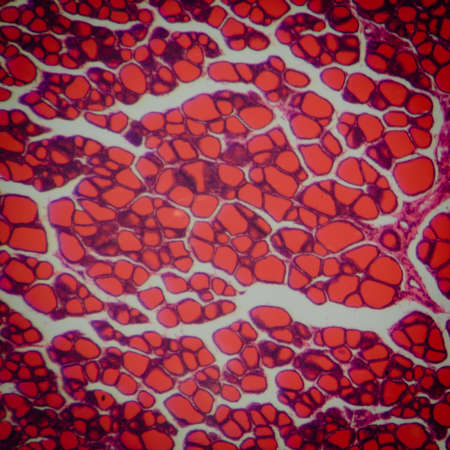 red cells: science medical anthropotomy physiology microscopic section of human thyroid gland background Stock Photo