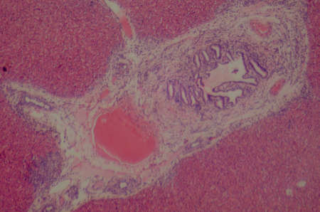 histology: science medical anthropotomy physiology microscopic section of human liver tissue