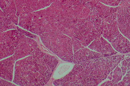 photomicrograph: science medical anthropotomy physiology microscopic section of human pancreas tissue Stock Photo