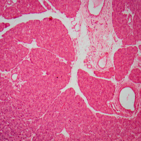 photomicrograph: science medical anthropotomy physiology micrograph of small intestinum tenue tissue