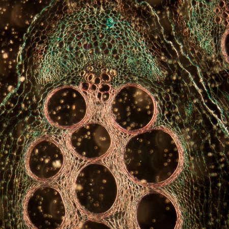 microscopic: microscopy micrograph plant tissue, stem of pumpkin, magnification 100X Stock Photo