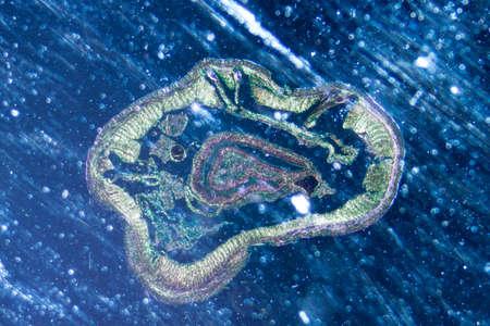 wigglers: science microscopy micrograph earthworm crosscutting