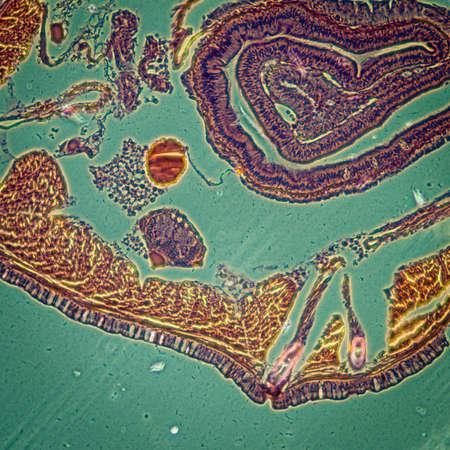 lombriz de tierra: microscop�a de la ciencia micrograf�a lombriz de tierra transversal Foto de archivo